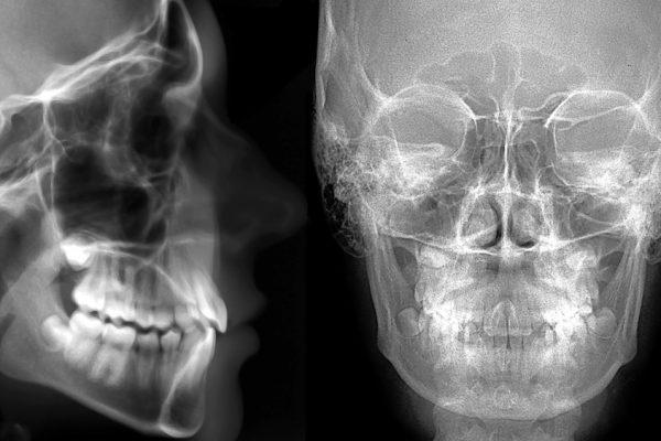 Wenn Kieferknochensubstanz fehlt muss ein Knochenaufbau durchgeführt werden