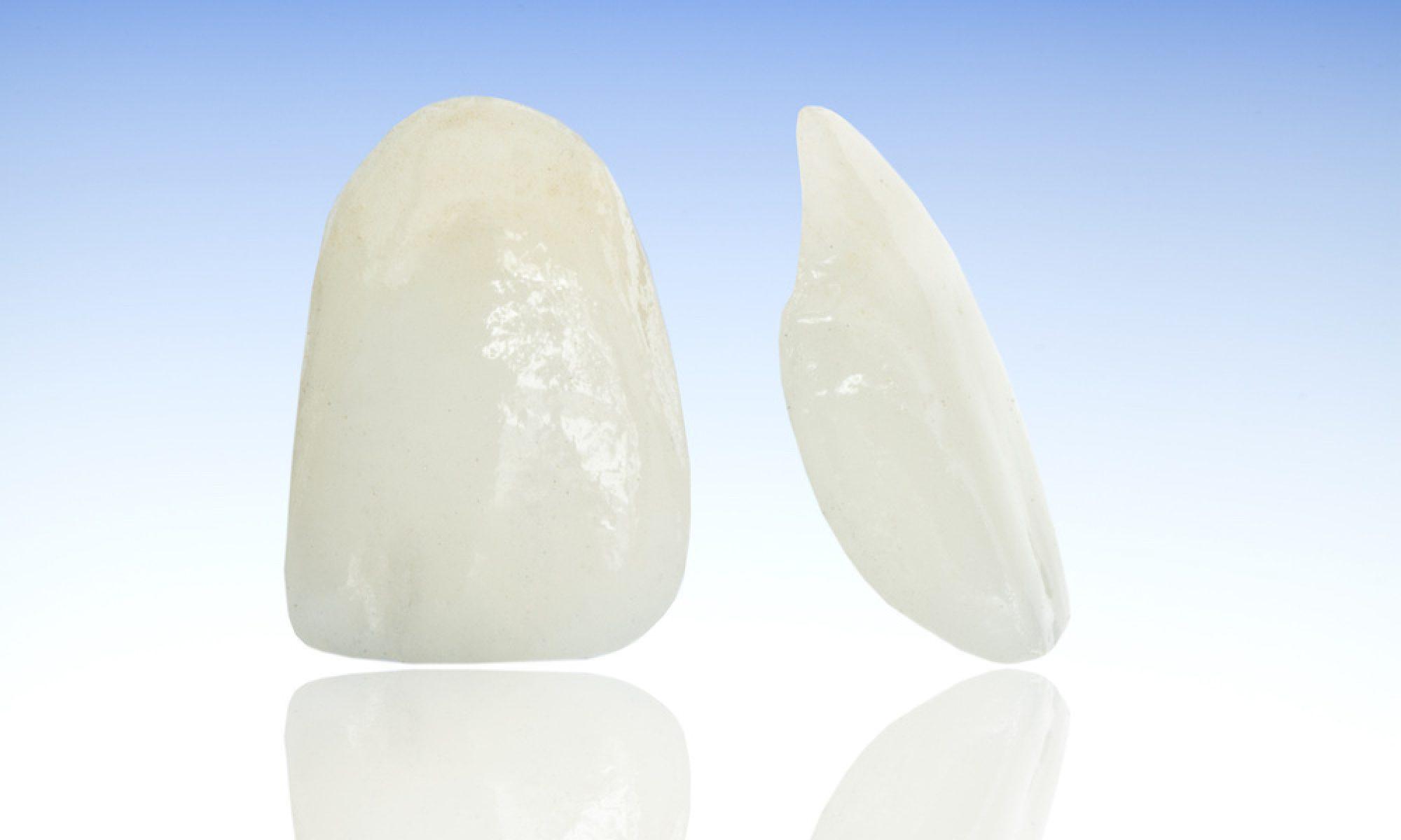 Veneers - dünne Verblendschalen für Ihre Zähne