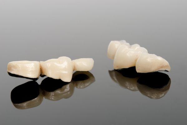 provisorische Zahnbrücken, Kunststoffverblendungen